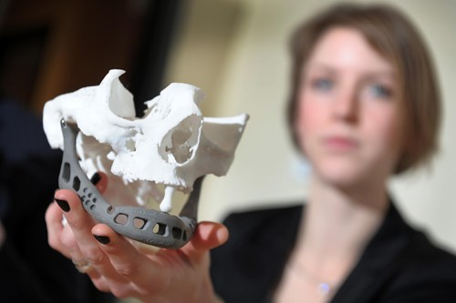 Doctor Ingeborg van Kroonenburgh, from the Maastrich university, shows the printed lower jaw during a a press conference on February 2, 2012 at the Hasselt Biomed universtiy campus in Diepenbeek. An artificial jaw using innovative 3D innovative technology has been successfully implanted into a Dutch woman suffering from a serious jaw infection, enabling her to speak again, the Belgian-Dutch eam announced. A custom jaw was developed by the Biomed Functional Morphology research group for the Dutch patient. The price of the 107-gram prothesis is around 9,000 Euros. AFP PHOTO / BELGA - YORICK JANSENS